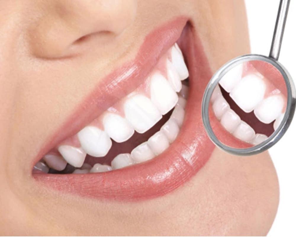 imagen de estetica dental clinica moratalaz 66