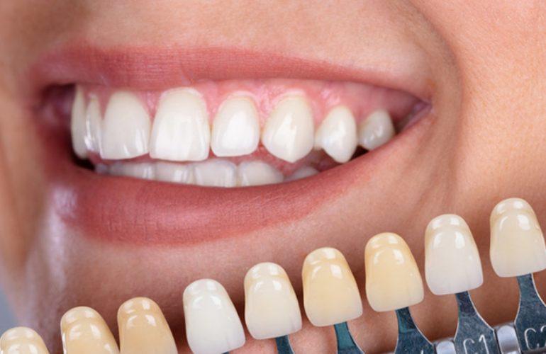 imagen de estetica dental carillas clinica dental madrid