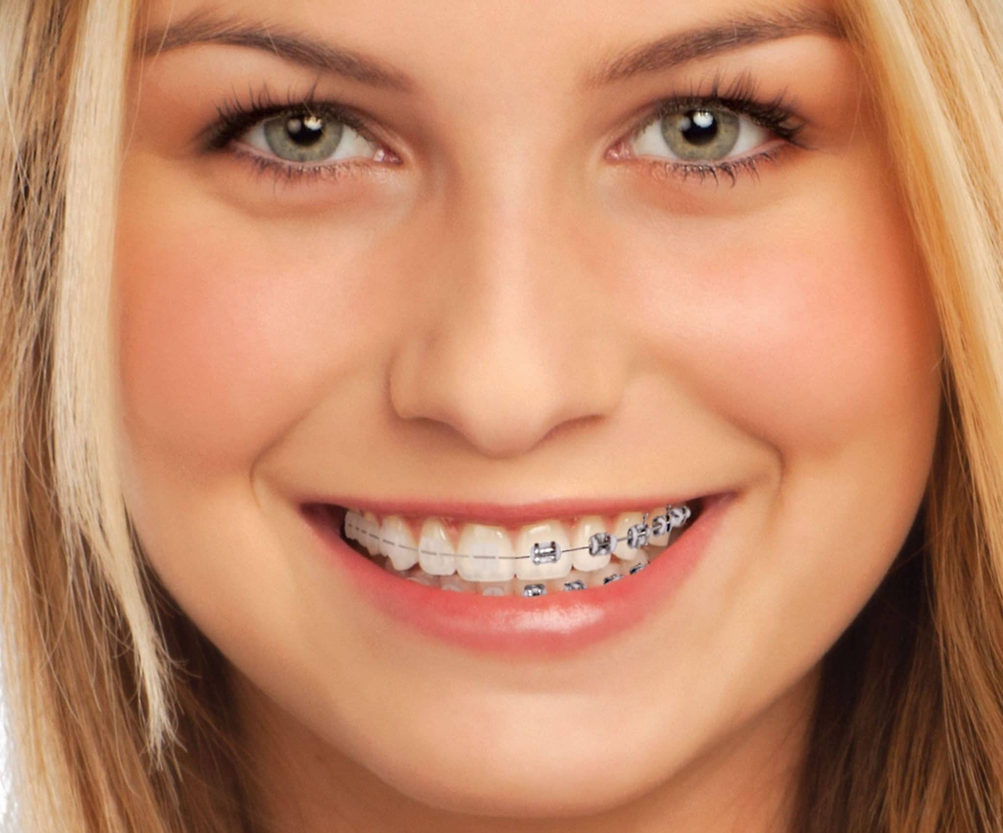 imagen de brackets-cerámica-ortodoncia-clinica-dental-madrid