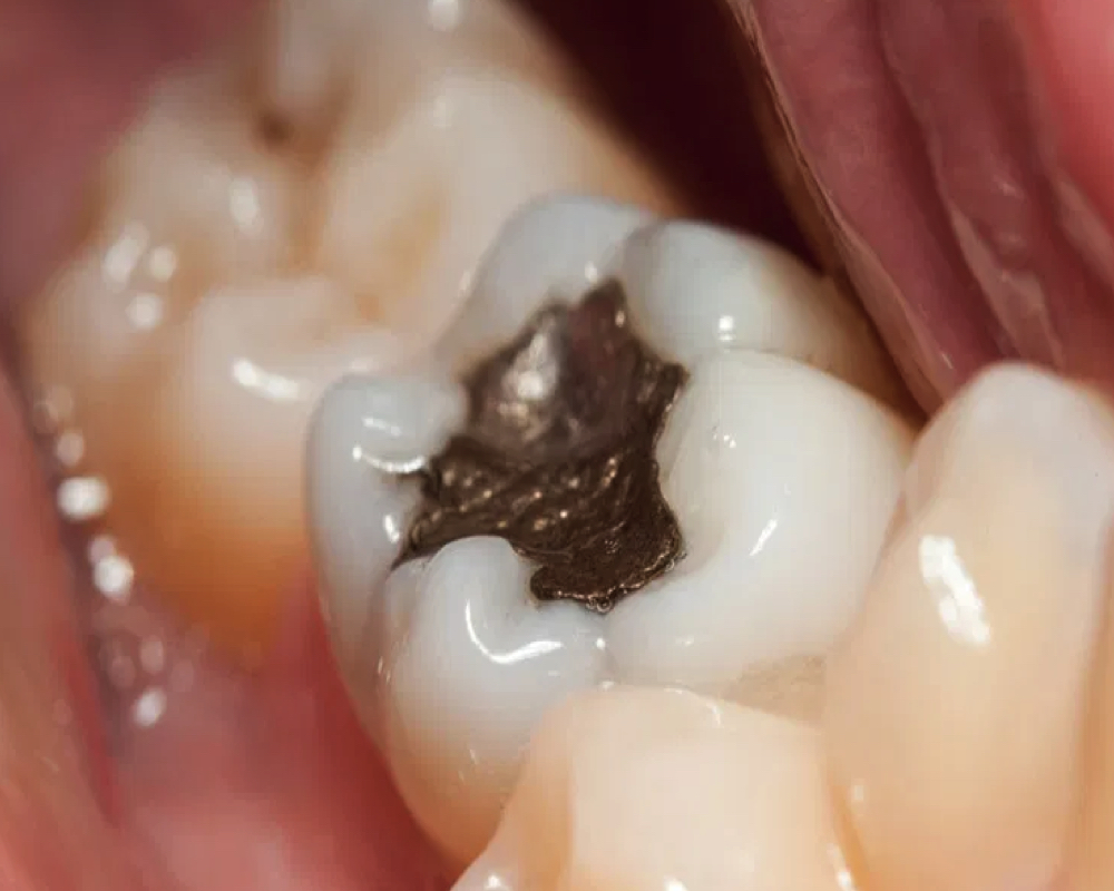 imagen de retirada segura de amalgamas de mercurio clinica dental salud natural one