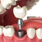 imagen de implantes dentales clinica dental salud natural one