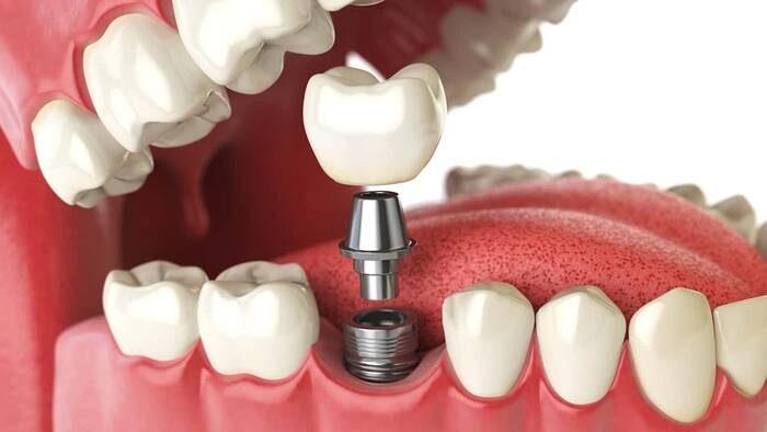 imagen de implantes dentales clinica dental salud natural one