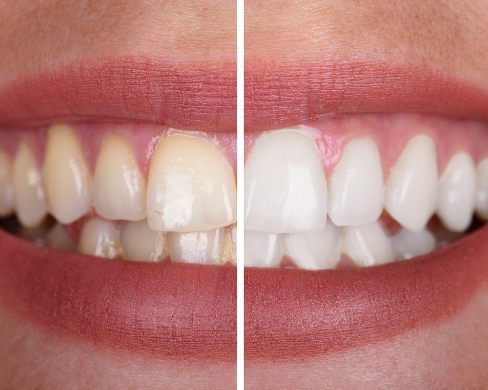 imagen de blanqueamiento dental madrid moncloa