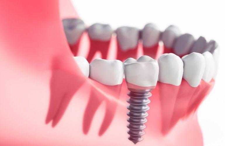 imagen de Implantes dentales o puentes dentales clinica dental en madrid